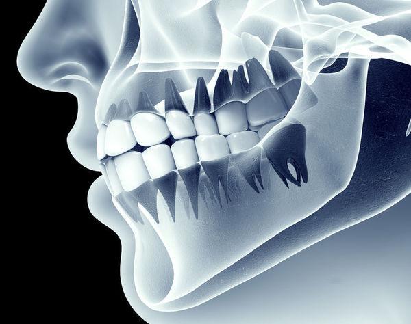 """衝撃の事実!歯磨きは食事の""""前""""にすべきだった"""