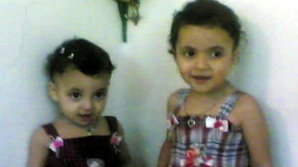 「きれいな子だと言われて」 シリア空爆が変えた人生